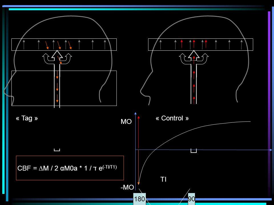 « Tag »« Control » MO -MO 18090 TI CBF = M / 2 αM0a * 1 / ד e (-TI/T1)