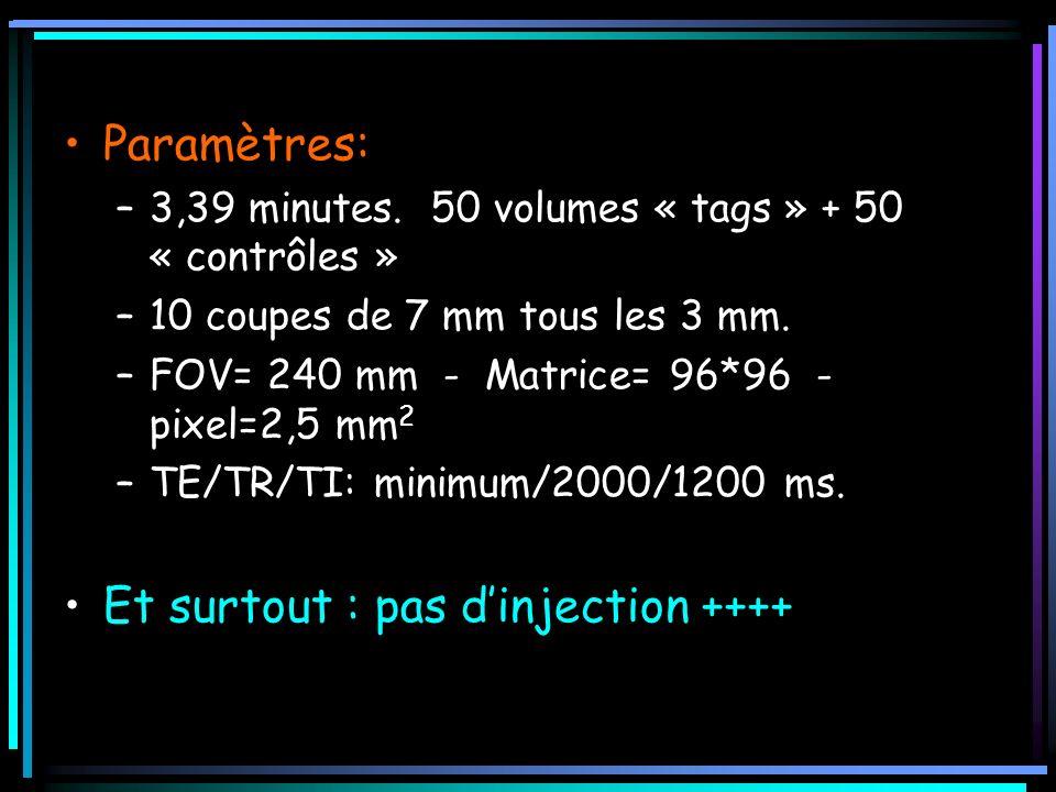 Paramètres: –3,39 minutes. 50 volumes « tags » + 50 « contrôles » –10 coupes de 7 mm tous les 3 mm. –FOV= 240 mm - Matrice= 96*96 - pixel=2,5 mm 2 –TE