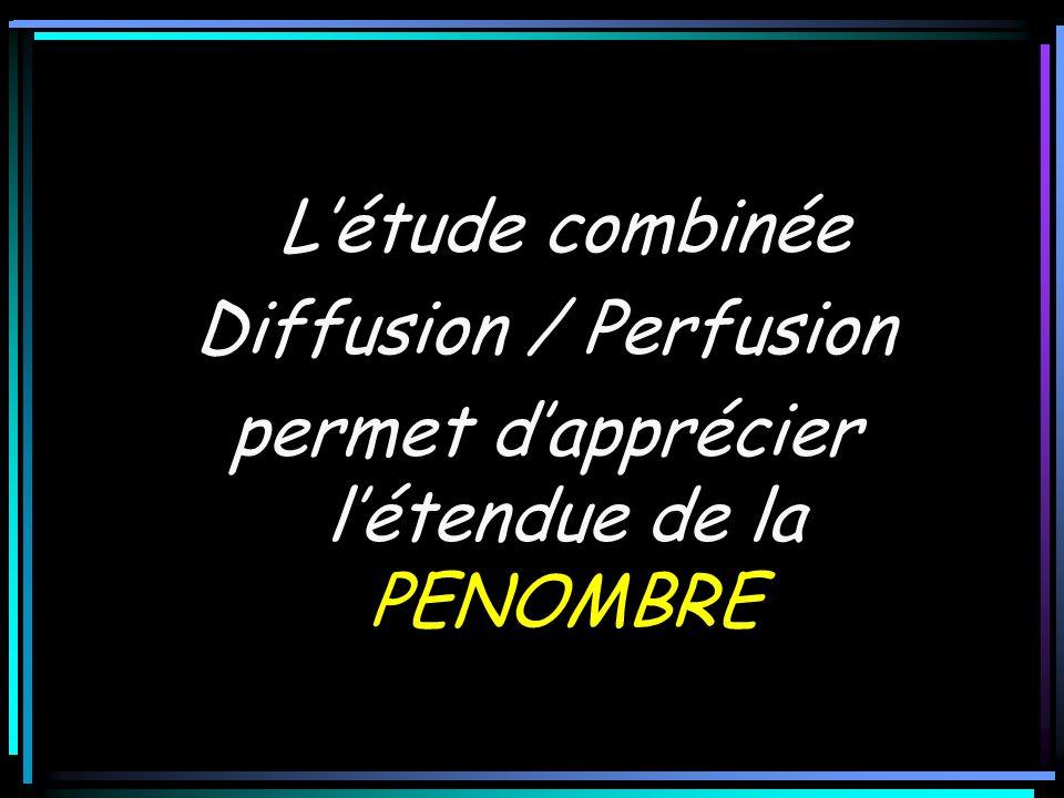 Létude combinée Diffusion / Perfusion permet dapprécier létendue de la PENOMBRE