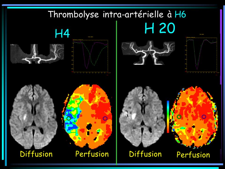 H4 H 20 Thrombolyse intra-artérielle à H6 Diffusion Perfusion