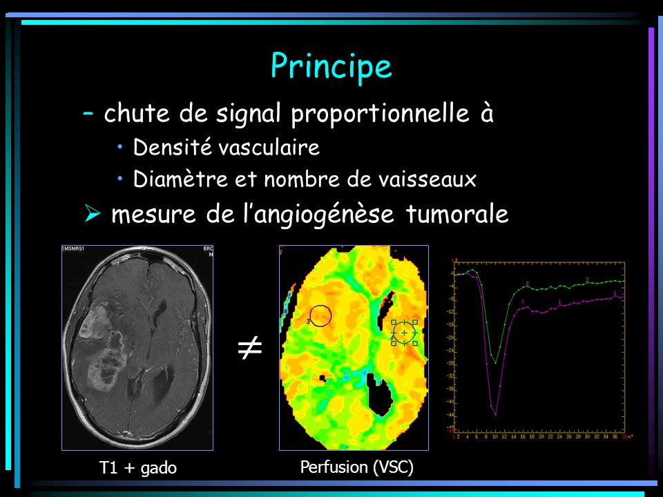 Principe –chute de signal proportionnelle à Densité vasculaire Diamètre et nombre de vaisseaux mesure de langiogénèse tumorale T1 + gado Perfusion (VS