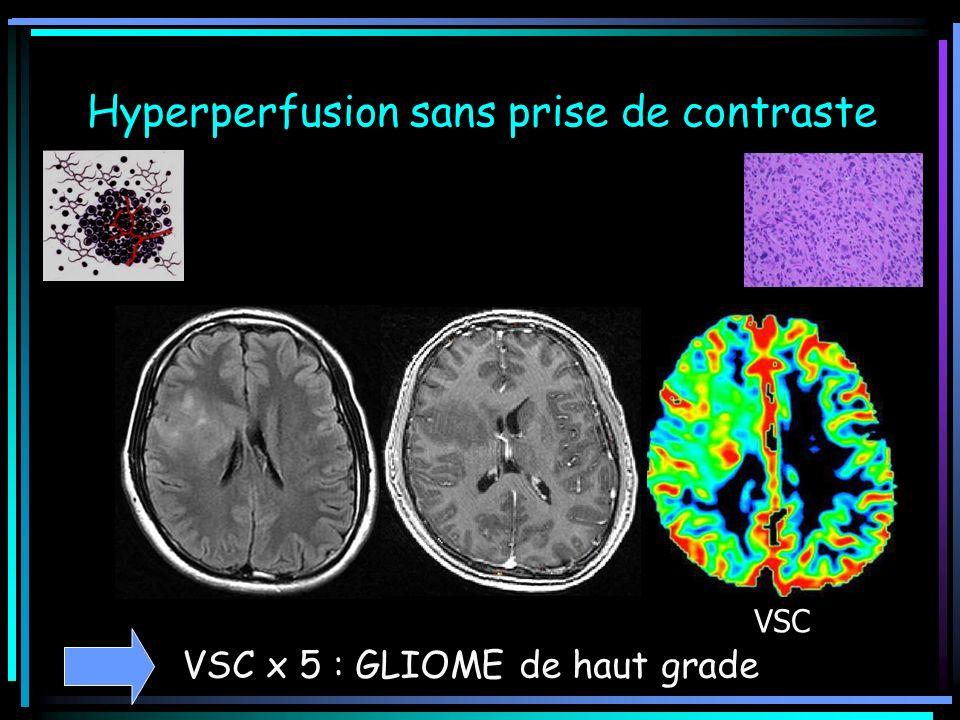 Hyperperfusion sans prise de contraste VSC VSC x 5 : GLIOME de haut grade