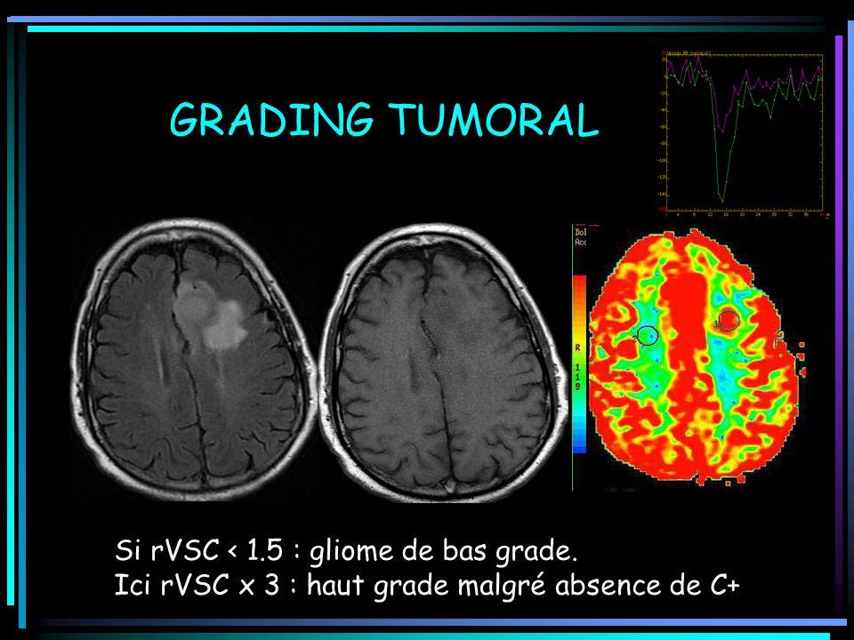 GRADING TUMORAL Si rVSC < 1.5 : gliome de bas grade. Ici rVSC x 3 : haut grade malgré absence de C+
