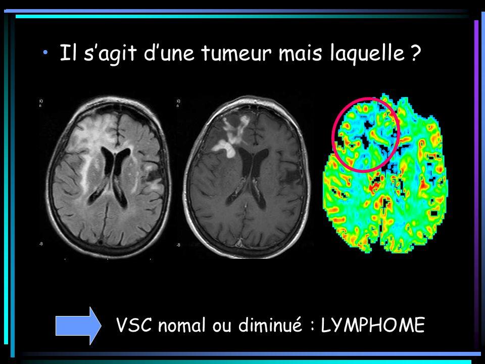 Il sagit dune tumeur mais laquelle ? VSC nomal ou diminué : LYMPHOME