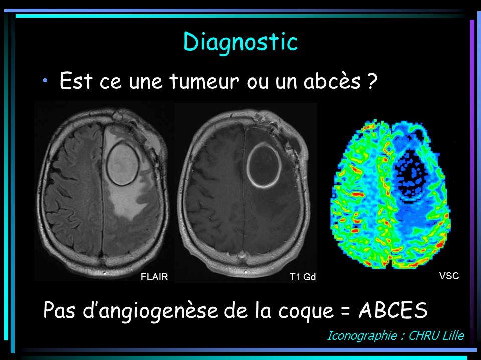 Diagnostic Est ce une tumeur ou un abcès ? FLAIR T1 Gd VSC Pas dangiogenèse de la coque = ABCES Iconographie : CHRU Lille