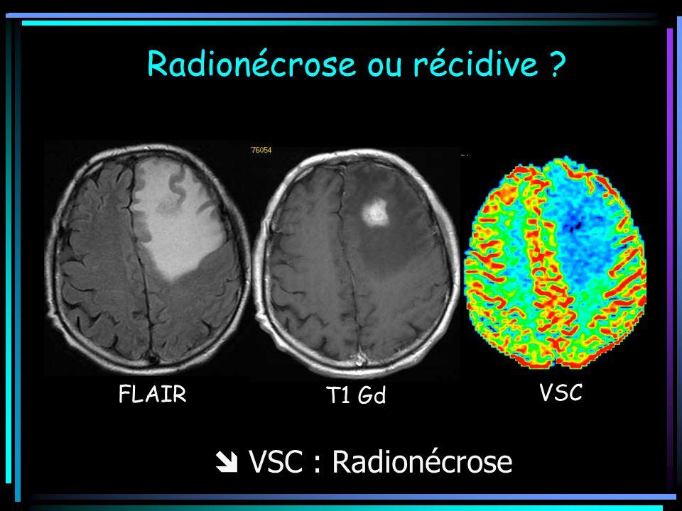 FLAIR T1 Gd VSC Radionécrose ou récidive ? VSC : Radionécrose