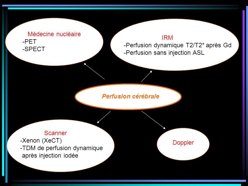 Perfusion cérébrale Médecine nucléaire -PET -SPECT Scanner -Xenon (XeCT) -TDM de perfusion dynamique après injection iodée Doppler IRM -Perfusion dyna