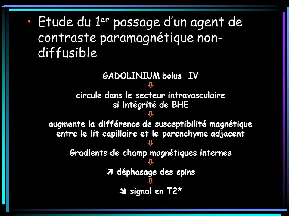 GADOLINIUM bolus IV circule dans le secteur intravasculaire si intégrité de BHE augmente la différence de susceptibilité magnétique entre le lit capil