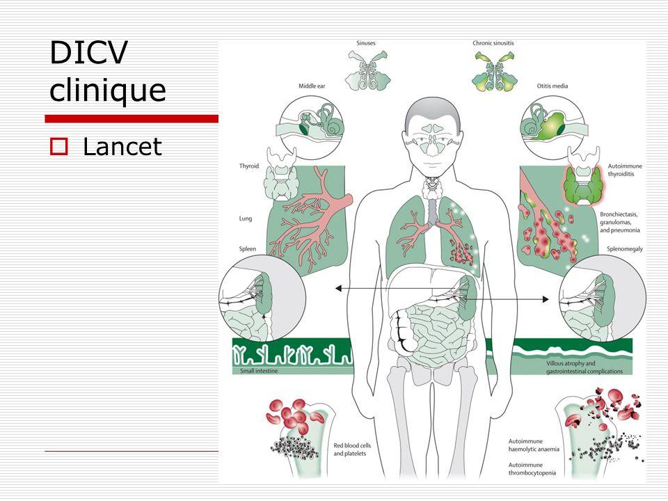 DICV clinique Lancet