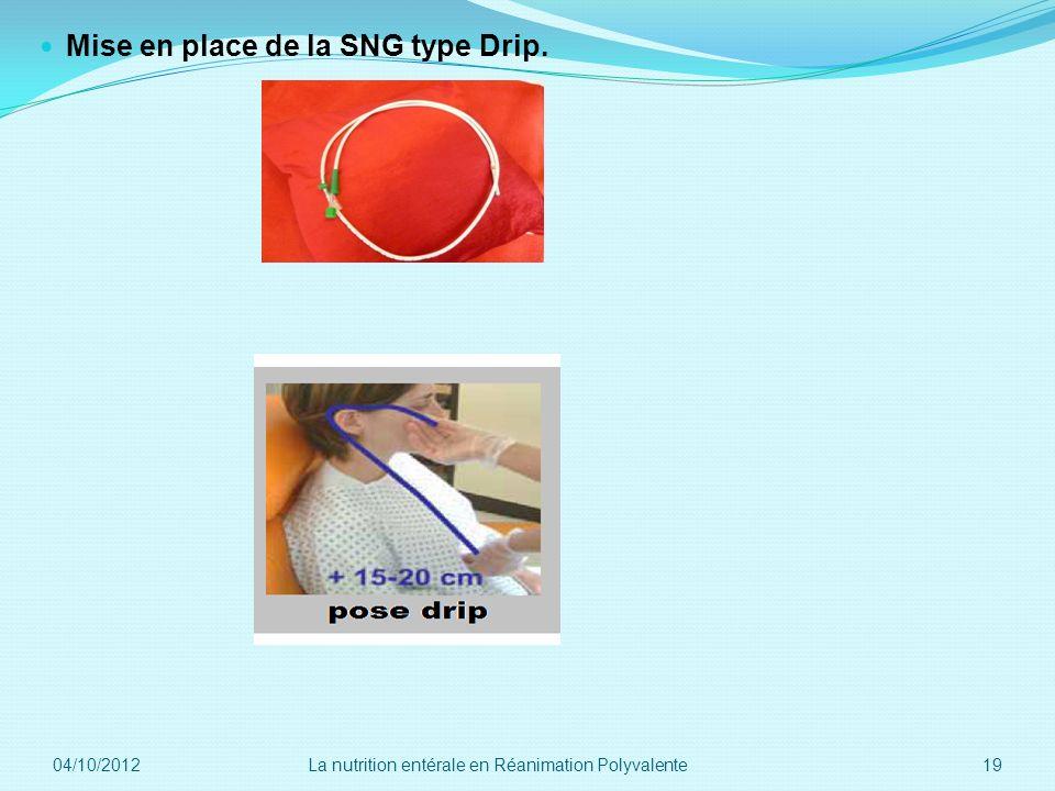 Mise en place de la SNG type Drip. 04/10/2012 19La nutrition entérale en Réanimation Polyvalente