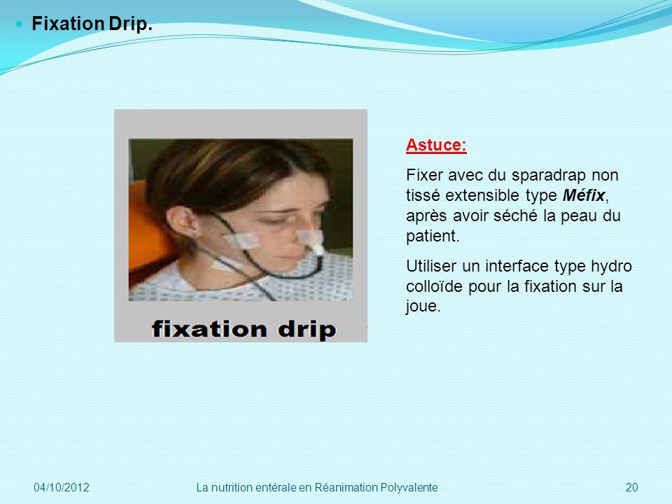 Fixation Drip. Astuce: Fixer avec du sparadrap non tissé extensible type Méfix, après avoir séché la peau du patient. Utiliser un interface type hydro