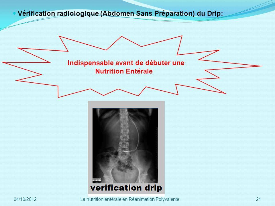 Vérification radiologique (Abdomen Sans Préparation) du Drip: Indispensable avant de débuter une Nutrition Entérale 04/10/2012 21La nutrition entérale