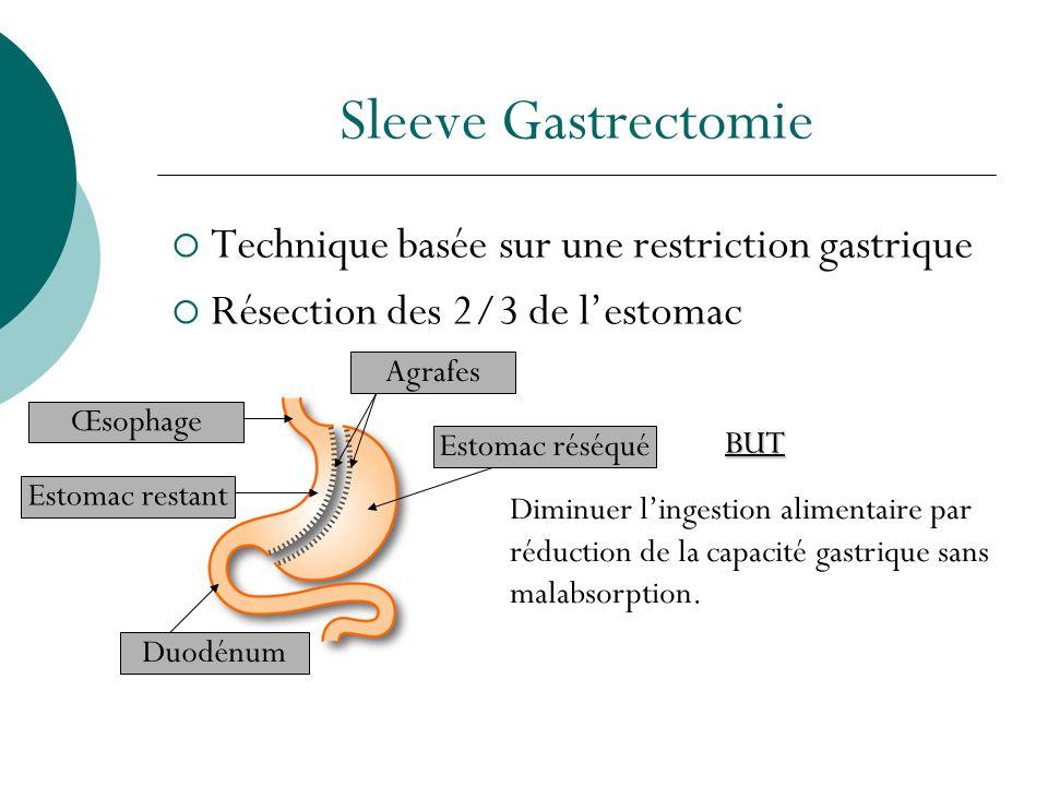 Sleeve Gastrectomie Technique basée sur une restriction gastrique Résection des 2/3 de lestomac Diminuer lingestion alimentaire par réduction de la ca