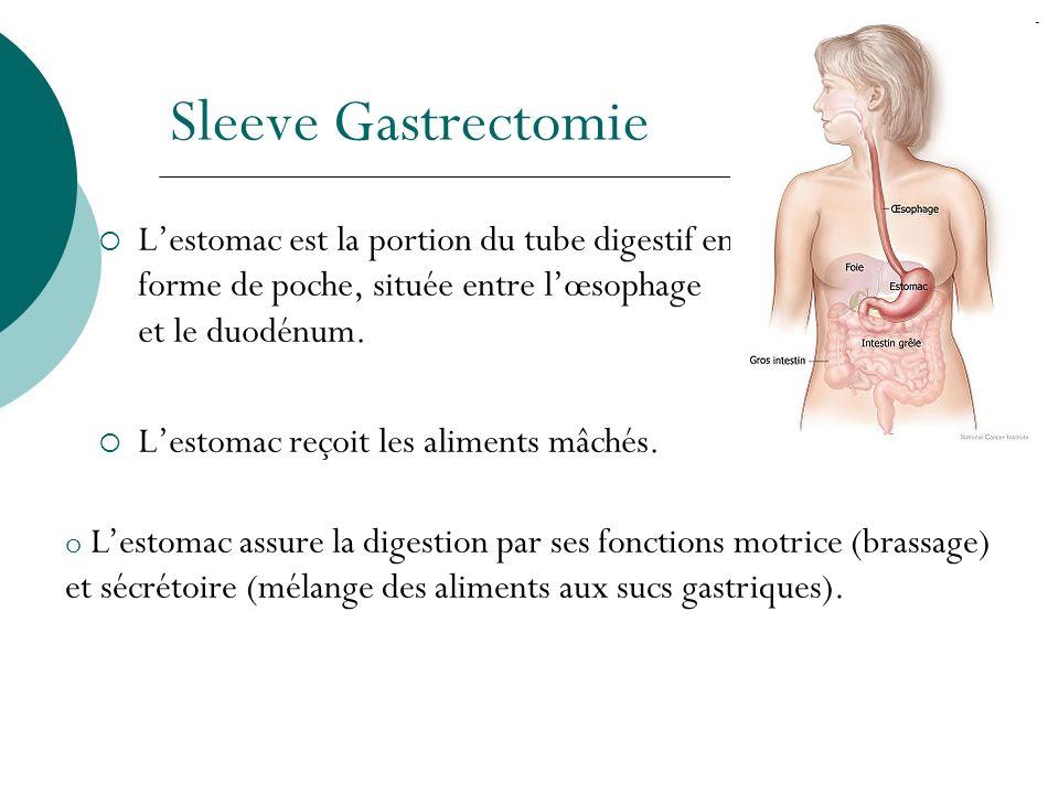 Sleeve Gastrectomie Lestomac est la portion du tube digestif en forme de poche, située entre lœsophage et le duodénum. Lestomac reçoit les aliments mâ