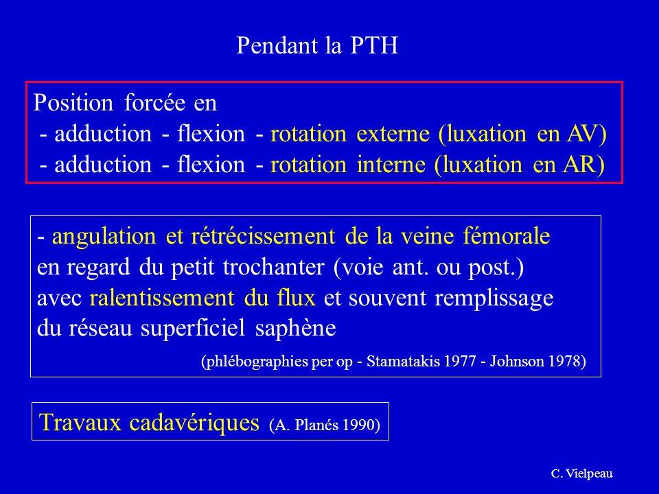 Pendant la PTH Position forcée en - adduction - flexion - rotation externe (luxation en AV) - adduction - flexion - rotation interne (luxation en AR)