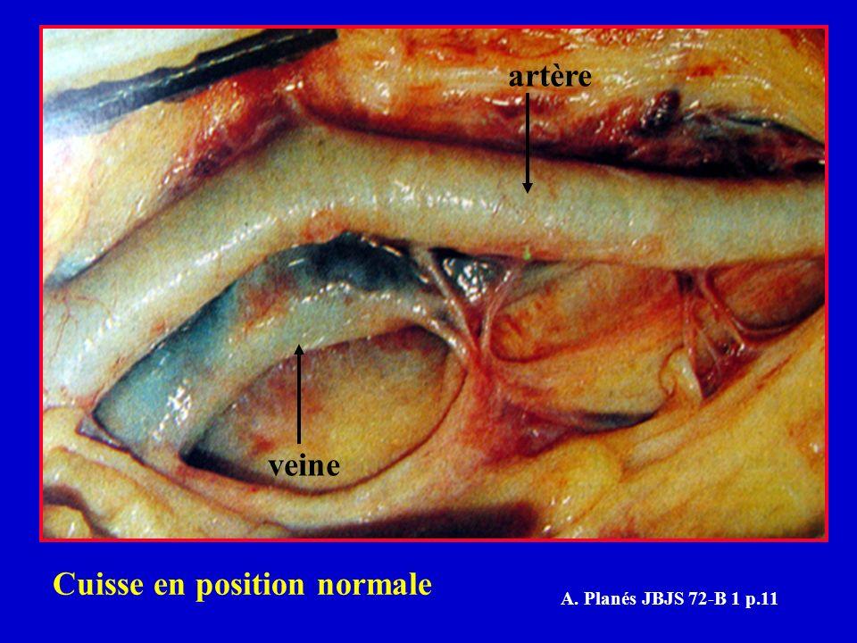 artère veine Cuisse en position normale A. Planés JBJS 72-B 1 p.11