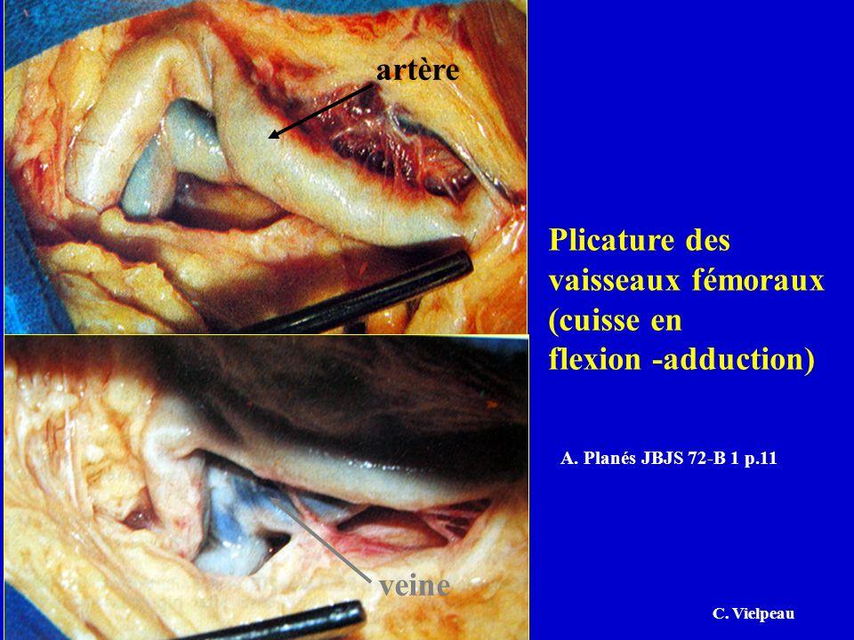 Plicature des vaisseaux fémoraux (cuisse en flexion -adduction) A. Planés JBJS 72-B 1 p.11 artère veine C. Vielpeau