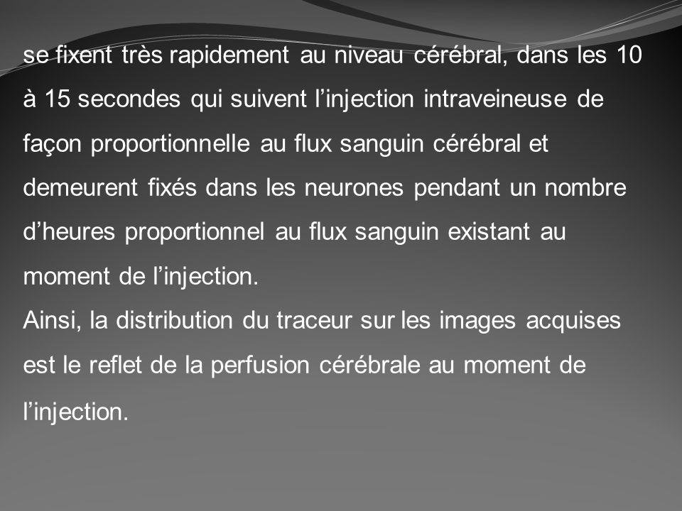 se fixent très rapidement au niveau cérébral, dans les 10 à 15 secondes qui suivent linjection intraveineuse de façon proportionnelle au flux sanguin