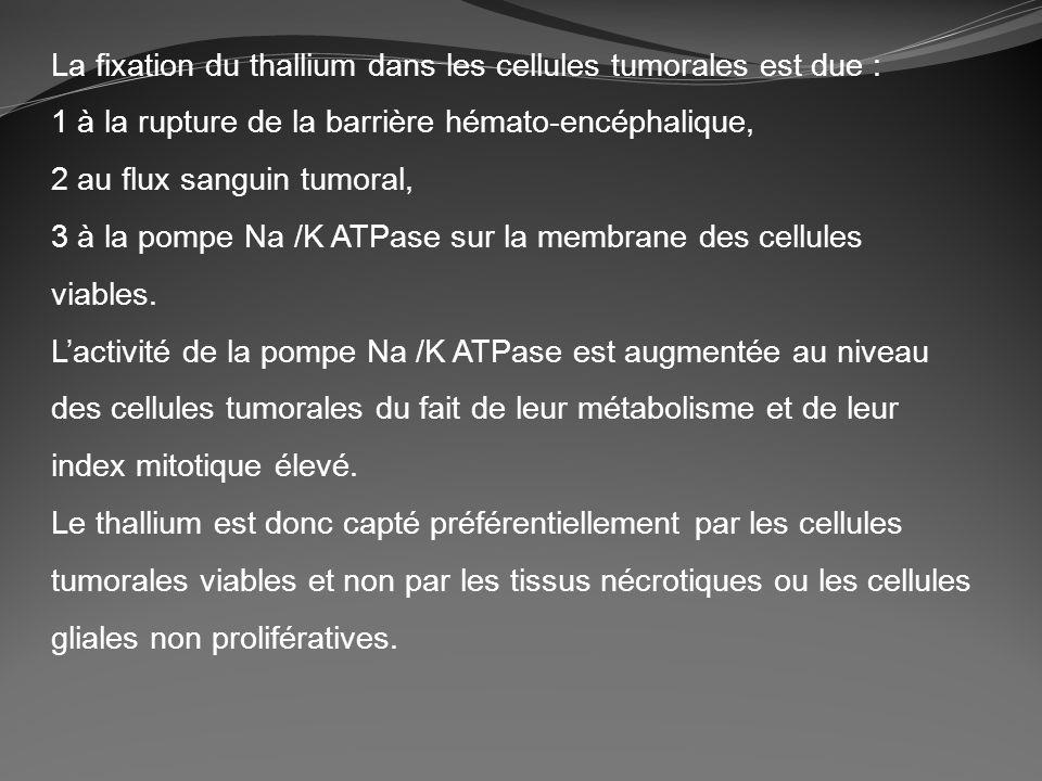 La fixation du thallium dans les cellules tumorales est due : 1 à la rupture de la barrière hémato-encéphalique, 2 au flux sanguin tumoral, 3 à la pom