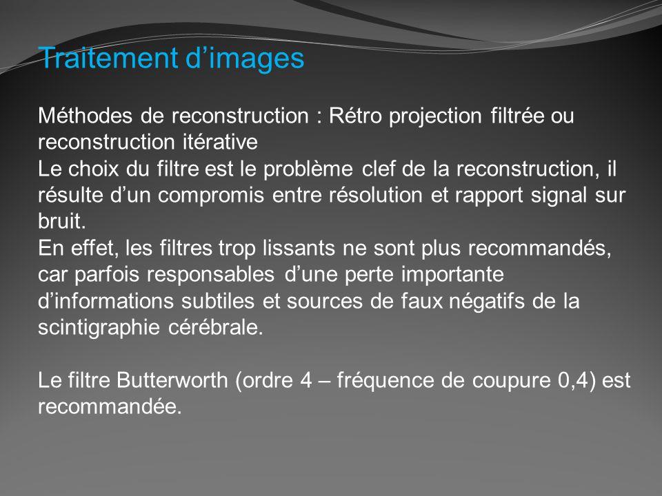 Traitement dimages Méthodes de reconstruction : Rétro projection filtrée ou reconstruction itérative Le choix du filtre est le problème clef de la rec