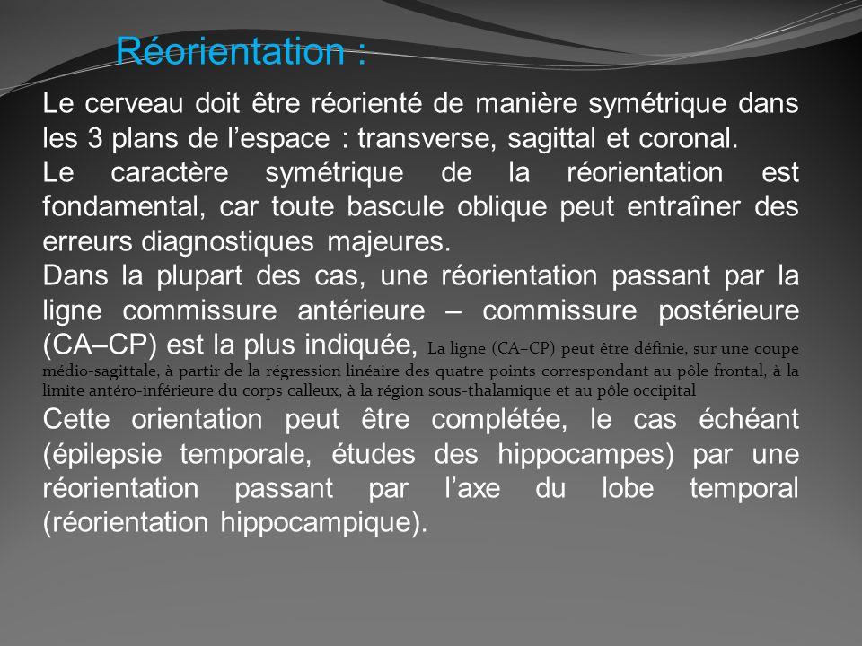 Réorientation : Le cerveau doit être réorienté de manière symétrique dans les 3 plans de lespace : transverse, sagittal et coronal. Le caractère symét