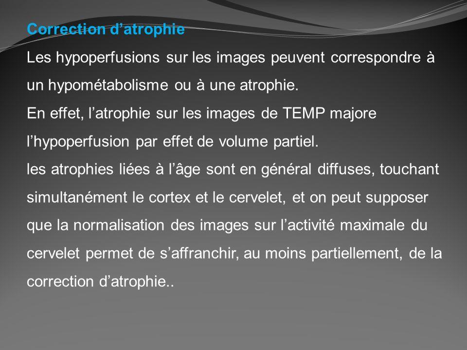 Correction datrophie Les hypoperfusions sur les images peuvent correspondre à un hypométabolisme ou à une atrophie. En effet, latrophie sur les images