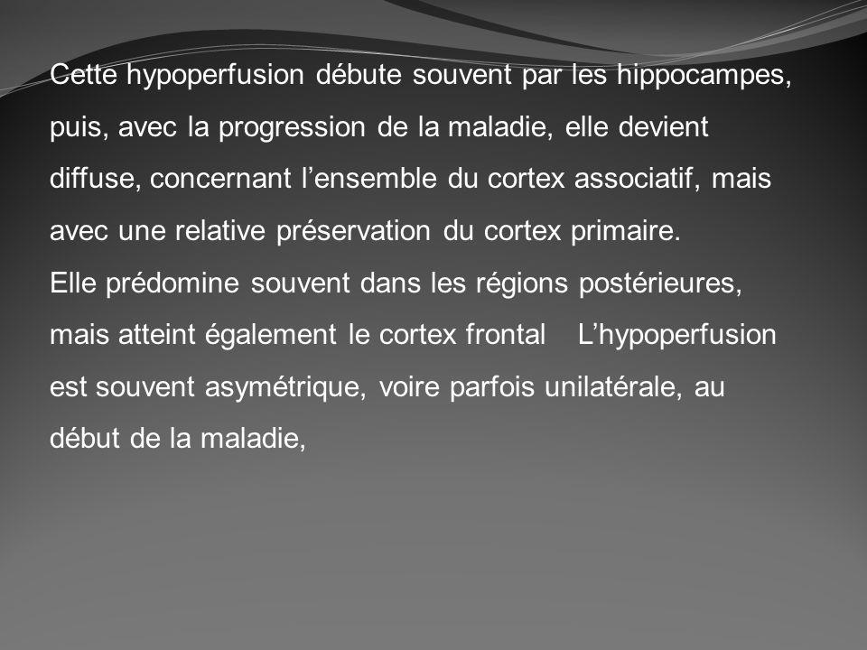 Cette hypoperfusion débute souvent par les hippocampes, puis, avec la progression de la maladie, elle devient diffuse, concernant lensemble du cortex