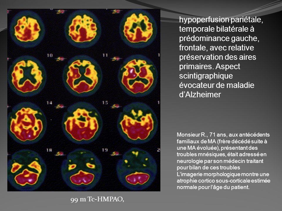 hypoperfusion pariétale, temporale bilatérale à prédominance gauche, frontale, avec relative préservation des aires primaires. Aspect scintigraphique