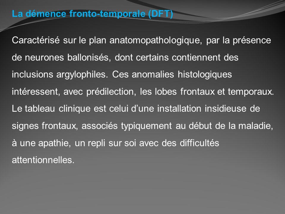 La démence fronto-temporale (DFT) Caractérisé sur le plan anatomopathologique, par la présence de neurones ballonisés, dont certains contiennent des i