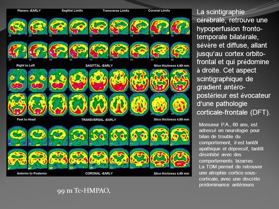 La scintigraphie c é r é brale, retrouve une hypoperfusion fronto- temporale bilat é rale, s é v è re et diffuse, allant jusqu au cortex orbito- front