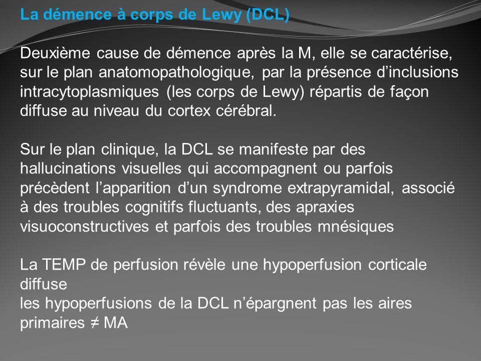 La démence à corps de Lewy (DCL) Deuxième cause de démence après la M, elle se caractérise, sur le plan anatomopathologique, par la présence dinclusio