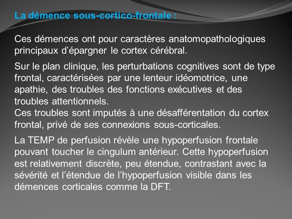 La démence sous-cortico-frontale : Ces démences ont pour caractères anatomopathologiques principaux dépargner le cortex cérébral. Sur le plan clinique
