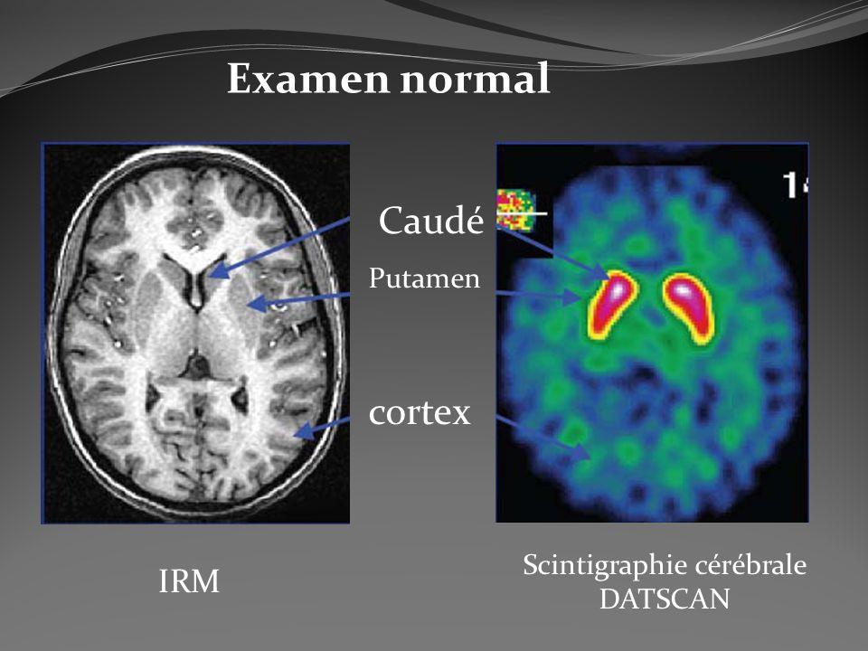 Caudé Putamen cortex Scintigraphie cérébrale DATSCAN IRM Examen normal