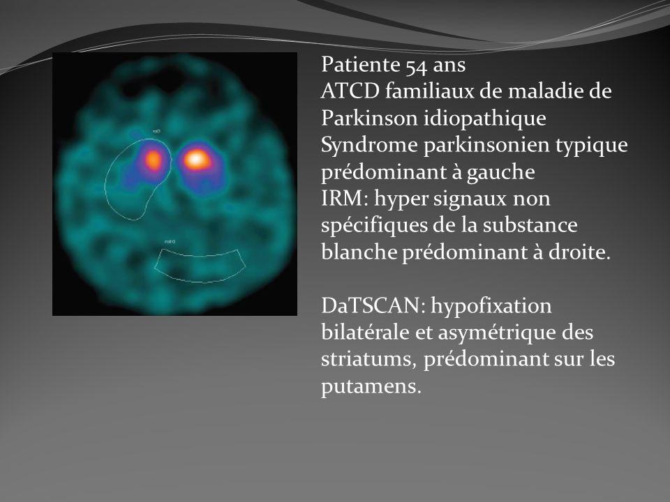 Patiente 54 ans ATCD familiaux de maladie de Parkinson idiopathique Syndrome parkinsonien typique prédominant à gauche IRM: hyper signaux non spécifiq