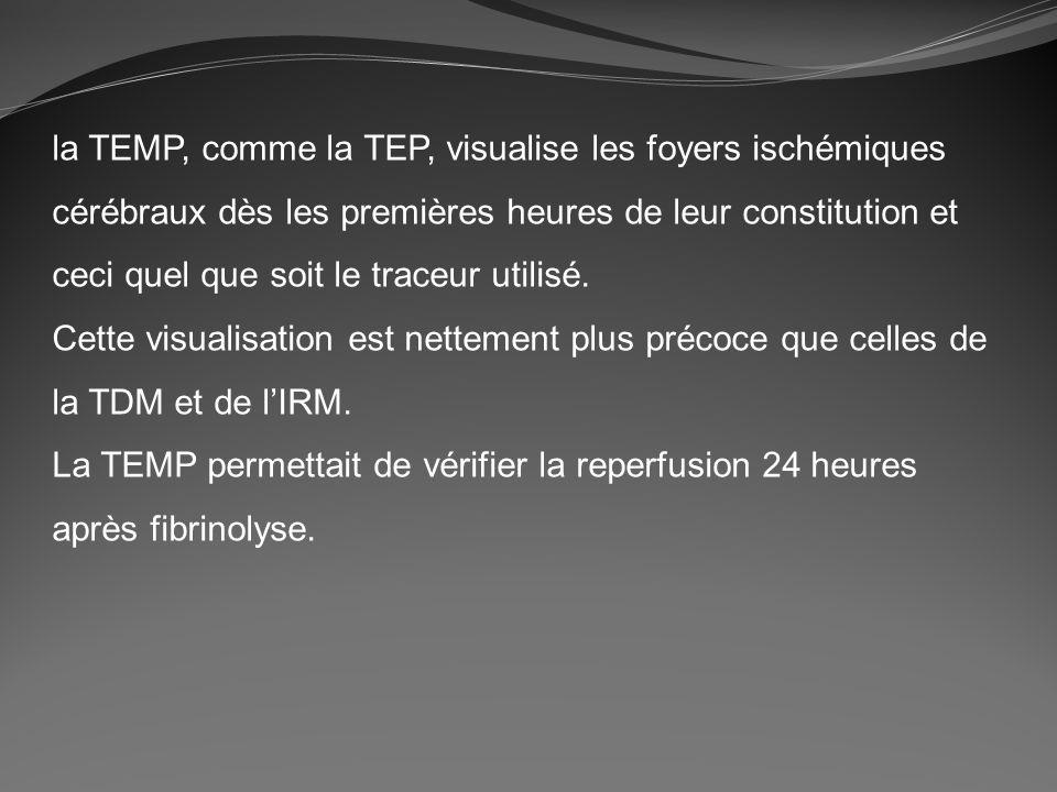 la TEMP, comme la TEP, visualise les foyers ischémiques cérébraux dès les premières heures de leur constitution et ceci quel que soit le traceur utili
