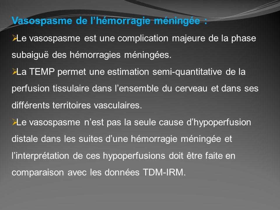 Vasospasme de lhémorragie méningée : Le vasospasme est une complication majeure de la phase subaiguë des hémorragies méningées. La TEMP permet une est