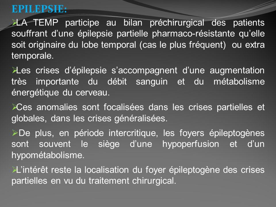 EPILEPSIE: LA TEMP participe au bilan préchirurgical des patients souffrant dune épilepsie partielle pharmaco-résistante quelle soit originaire du lob