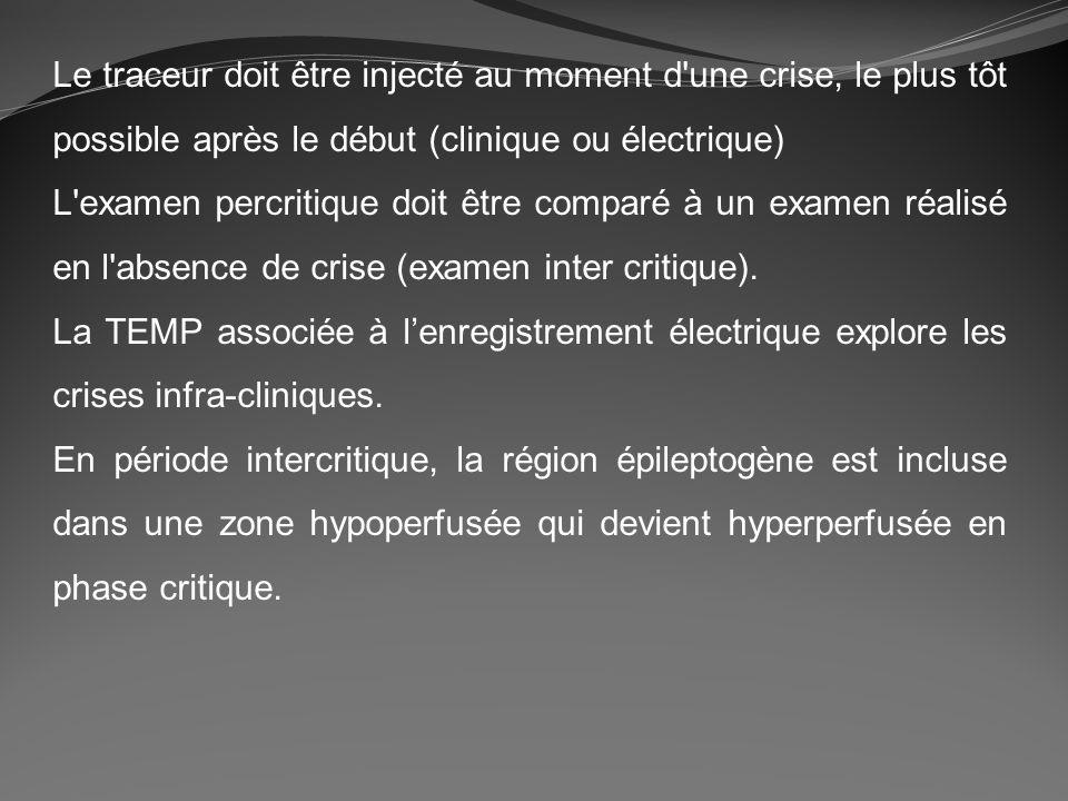 Le traceur doit être injecté au moment d'une crise, le plus tôt possible après le début (clinique ou électrique) L'examen percritique doit être compar
