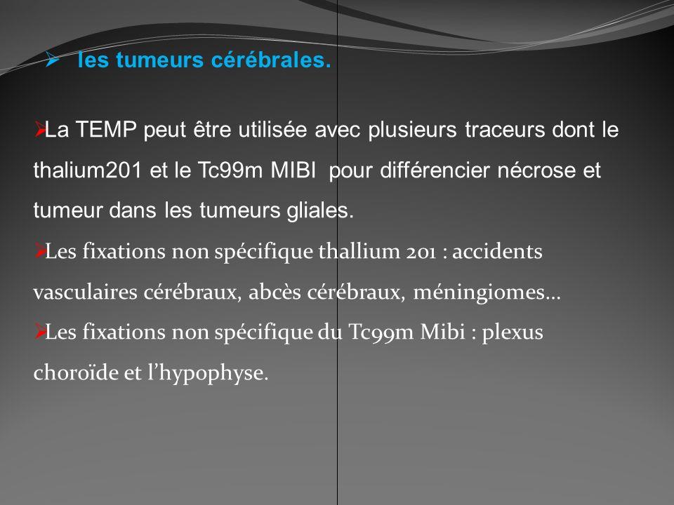 les tumeurs cérébrales. La TEMP peut être utilisée avec plusieurs traceurs dont le thalium201 et le Tc99m MIBI pour différencier nécrose et tumeur dan