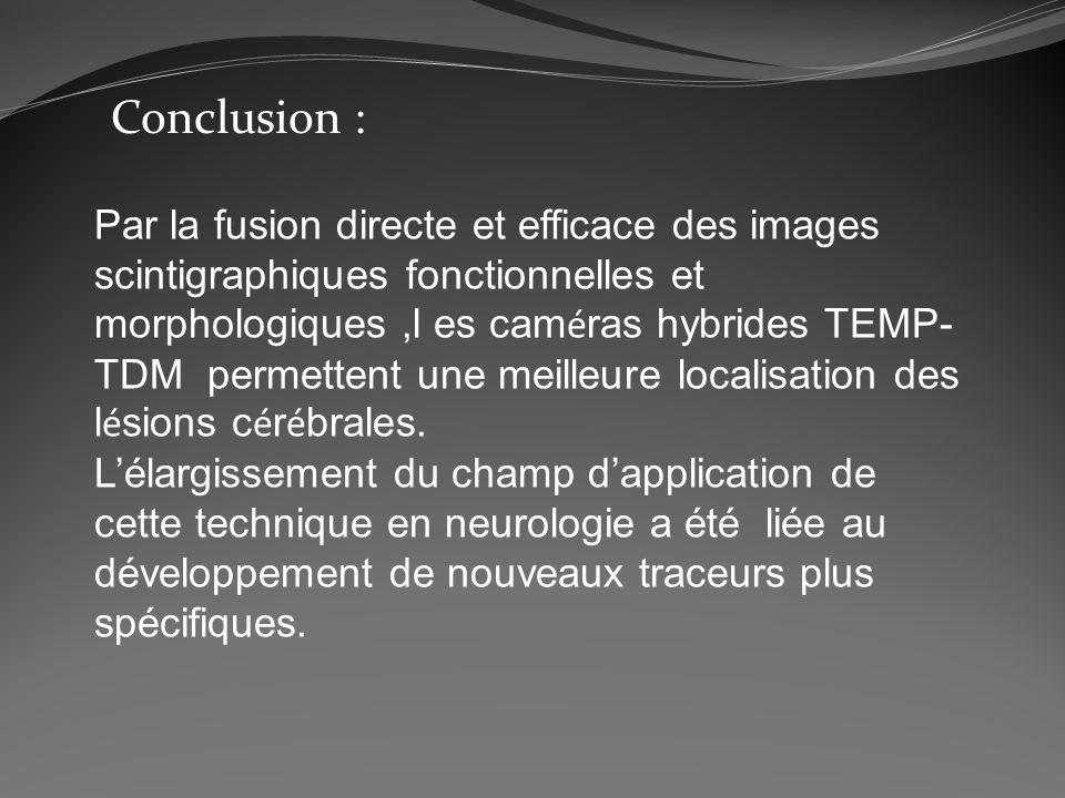 Conclusion : Par la fusion directe et efficace des images scintigraphiques fonctionnelles et morphologiques,l es cam é ras hybrides TEMP- TDM permette