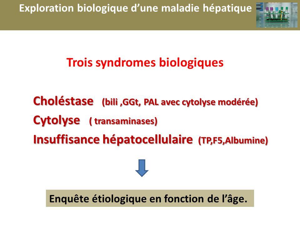 Trois syndromes biologiques Choléstase (bili,GGt, PAL avec cytolyse modérée) Cytolyse ( transaminases) Cytolyse ( transaminases) Insuffisance hépatoce