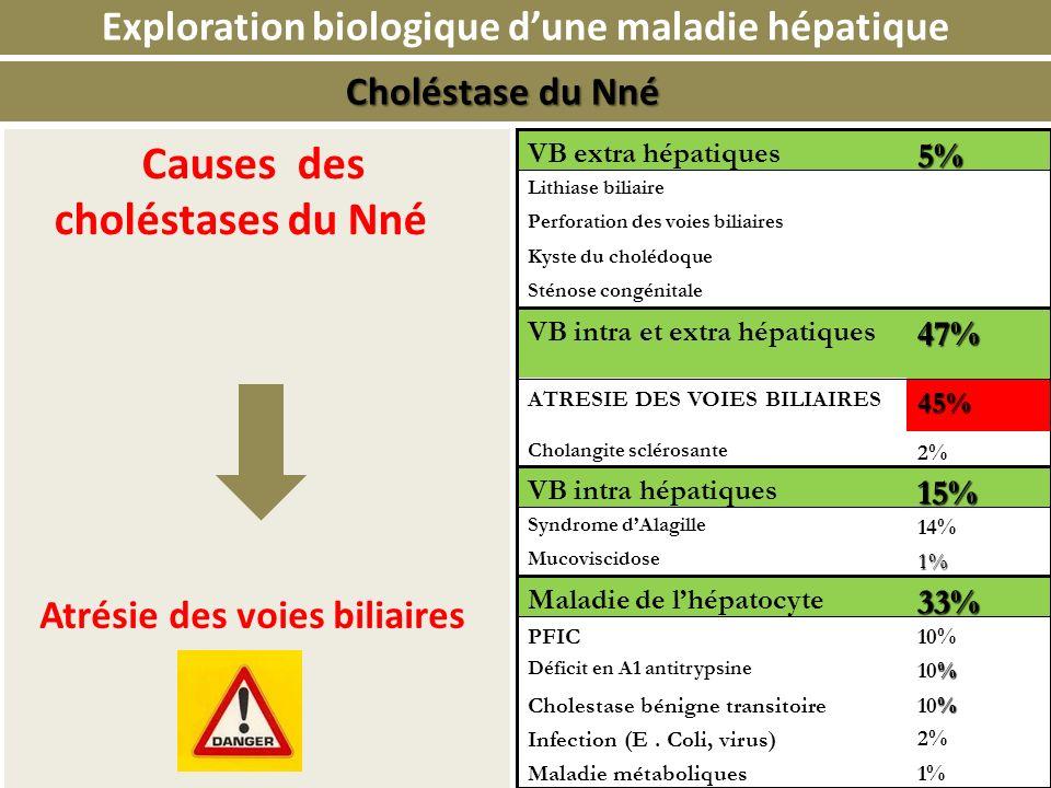 Causes des choléstases du Nné Exploration biologique dune maladie hépatique 1%Maladie métaboliques Infection (E. Coli, virus) % 10% 2% Cholestase béni