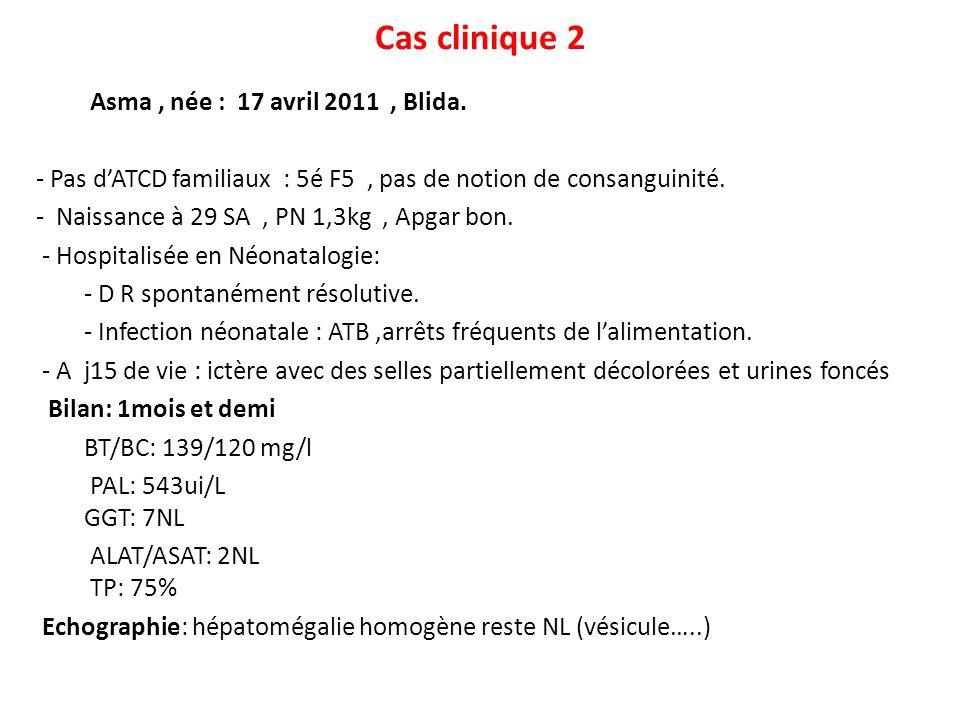Cas clinique 2 Asma, née : 17 avril 2011, Blida. - Pas dATCD familiaux : 5é F5, pas de notion de consanguinité. - Naissance à 29 SA, PN 1,3kg, Apgar b