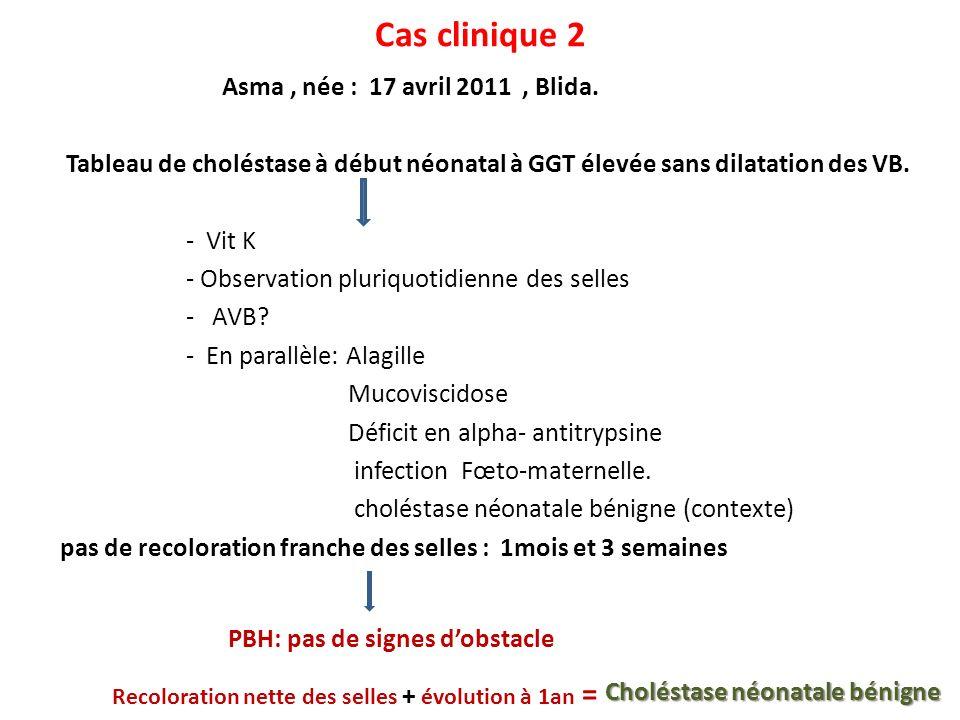 Cas clinique 2 Asma, née : 17 avril 2011, Blida. Tableau de choléstase à début néonatal à GGT élevée sans dilatation des VB. - Vit K - Observation plu