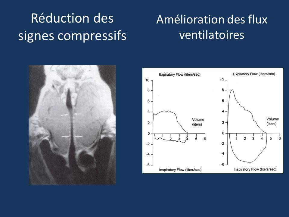 Amélioration des flux ventilatoires Réduction des signes compressifs
