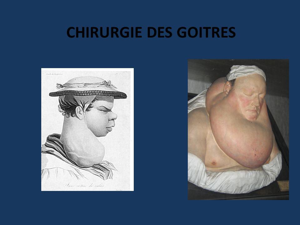 Fin du XIXème siècle – Mortalité = 20% – Crises aiguës thyréotoxiques postopératoires CHIRURGIE DE LA MALADIE DE BASEDOW