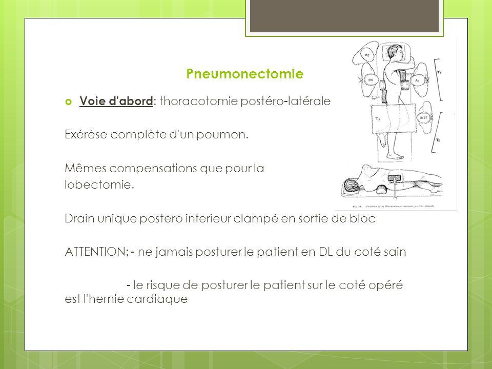 Pneumonectomie Voie d abord : thoracotomie postéro-latérale Exérèse complète d un poumon.