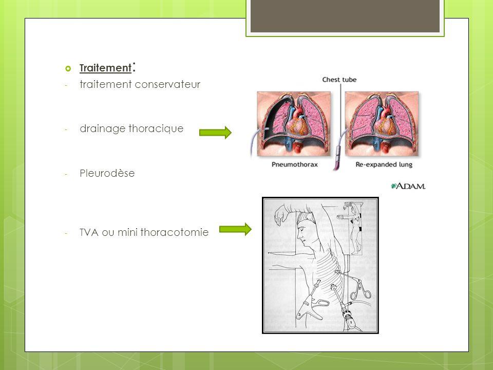 Traitement : - traitement conservateur - drainage thoracique - Pleurodèse - TVA ou mini thoracotomie
