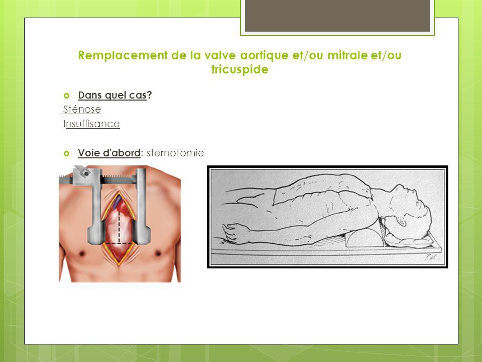 Remplacement de la valve aortique et/ou mitrale et/ou tricuspide Dans quel cas.