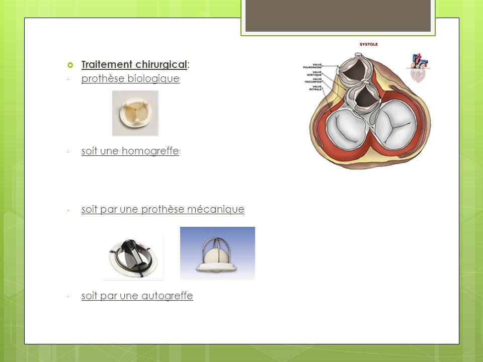 Traitement chirurgical : - prothèse biologique - soit une homogreffe - soit par une prothèse mécanique - soit par une autogreffe